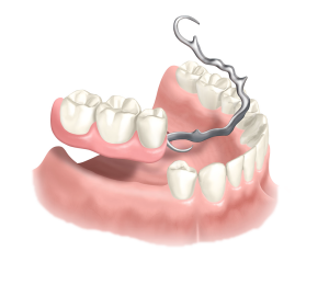 herausnehmnbarer-Zahnersatz-horw-zahnarzt